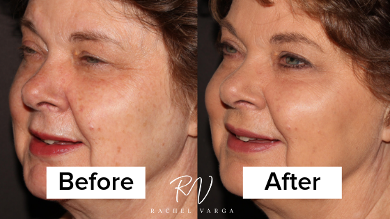 Before and After an Anti-Wrinkle Injection!2 min read