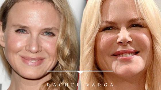 Celebrity Plastic Surgery – Nicole Kidman